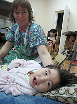 zdjęcie: niepełnosprawne dziewczynka